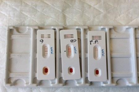 Kit per screening sierologici